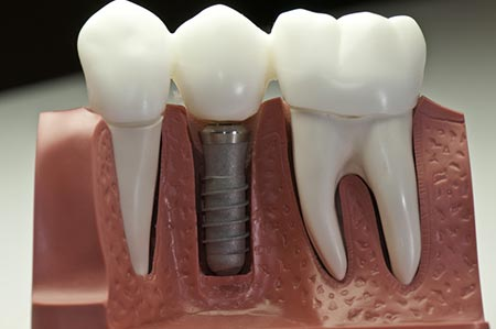 Dental Implants in London ON | Cosmetic and Family Dentist | 525 Dental